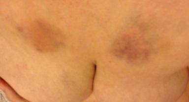 Boobie Bruises