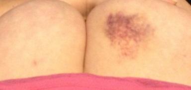 boobie bruises1